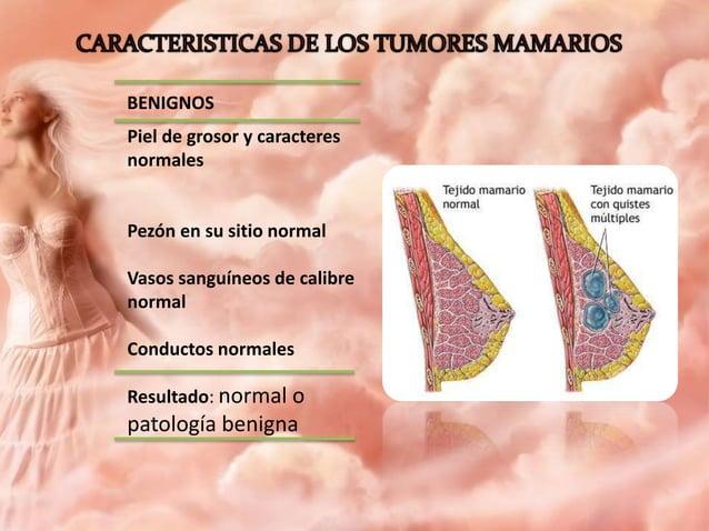 """BENIGNOS Tumor redondo u ovalado Muestra opacidad homogénea Bordes nítidos Presencia de """"halo de seguridad"""" Tejidos circun..."""