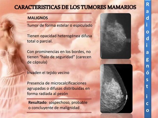 Mastografía y/o ultrasonido según la edad, hallazgos y detección de factores de riesgo Examen clínico completo con énfasis...