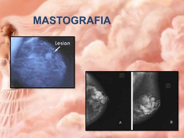 Caracteres clínicos tamaño Periodo I Periodo I Periodo III Periodo IV Etapa Ia Menor de 2 cm Etapa Ib Menor de 2 cm Etapa ...