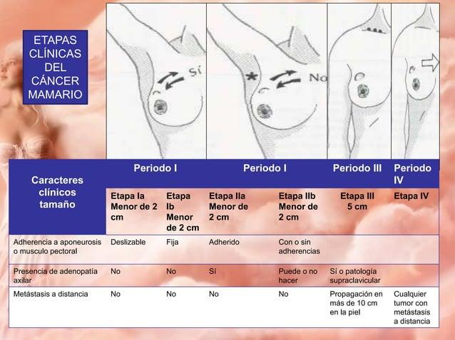 Tratamiento • Multidisciplinario • Actualmente se utilizan: 1. Cirugía 2. Radioterapia 3. Quimioterapia 4. Hormonoterapia ...