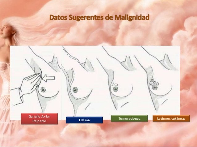 Tratamiento • Cirugía: 1. Conservador 2. Radical Curativo 3. Radical Paliativo 4. Reconstructivo Esquemas terapéuticos com...