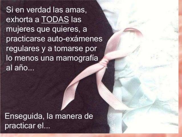 cáncer de mama CaMa