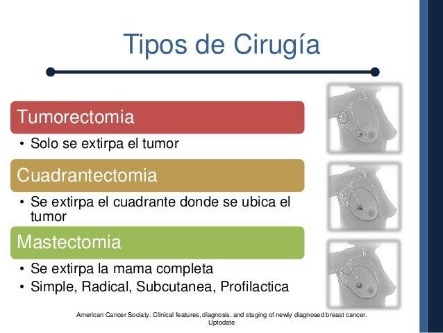 Los instrumentos quirúrgicos para la cirugía vascular