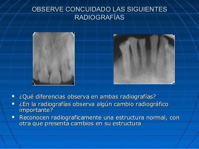 OBSERVE CONCUIDADO LAS SIGUIENTES RADIOGRAFÍAS       ¿Qué diferencias observa en ambas radiografías? ¿En la radiografía...