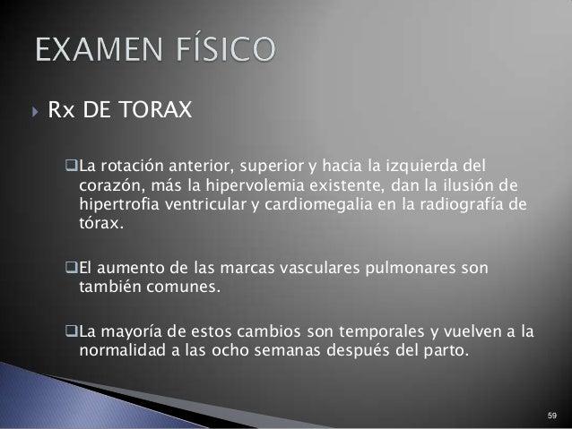  Rx DE TORAX La rotación anterior, superior y hacia la izquierda del corazón, más la hipervolemia existente, dan la ilus...