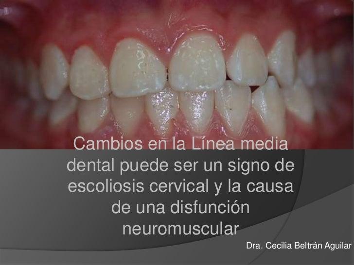 Cambios en la Línea media dental puede ser un signo de escoliosis cervical y la causa de una disfunción neuromuscular <br ...