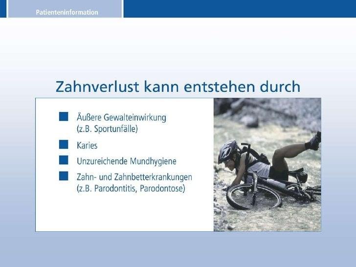 Patienteninformation über Zahnimplantate Slide 3