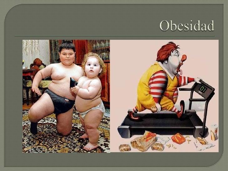 Obesidad<br />