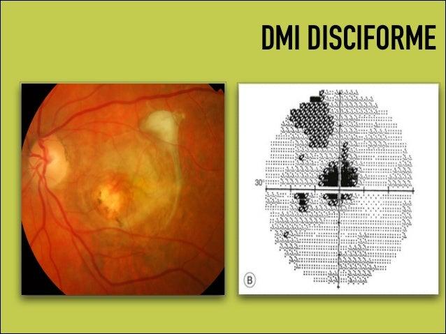 Campos Visuais E Retina
