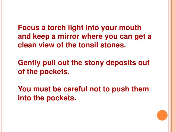 how to get tonsil stones removed