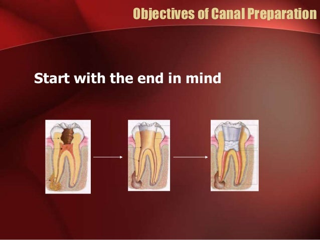 Objectives of Canal Preparation Start with the end in mind