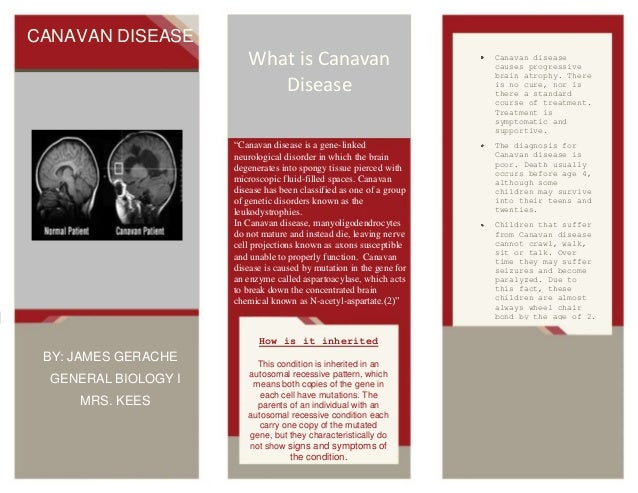 CANAVAN DISEASE  What is Canavan Disease  Canavan disease causes progressive brain atrophy. There is no cure, nor is there...