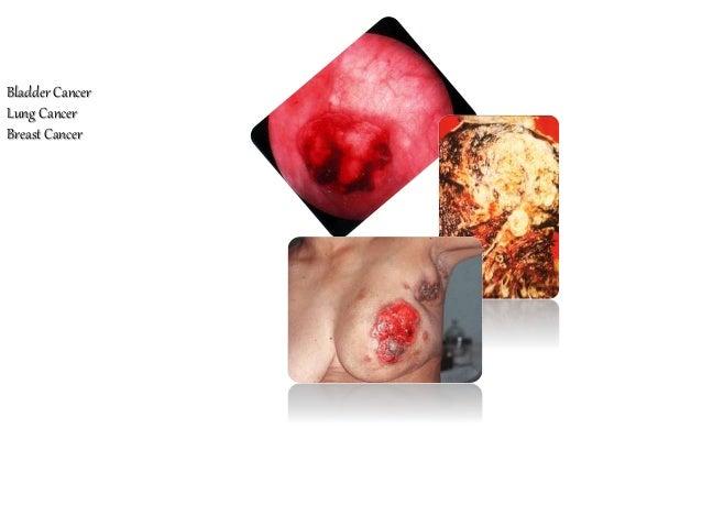 Bladder Cancer Lung Cancer Breast Cancer Melanoma