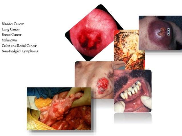 Bladder Cancer Lung Cancer Breast Cancer Melanoma Colon and Rectal Cancer Non-Hodgkin Lymphoma Endometrial Cancer