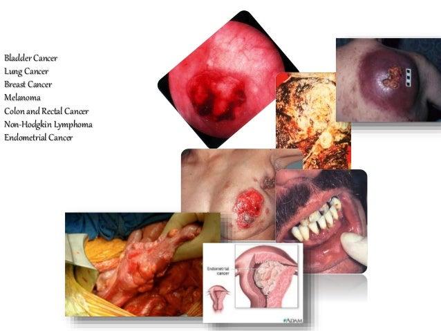 Bladder Cancer Lung Cancer Breast Cancer Melanoma Colon and Rectal Cancer Non-Hodgkin Lymphoma Endometrial Cancer Pancreat...
