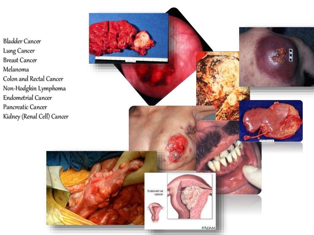 Bladder Cancer Lung Cancer Breast