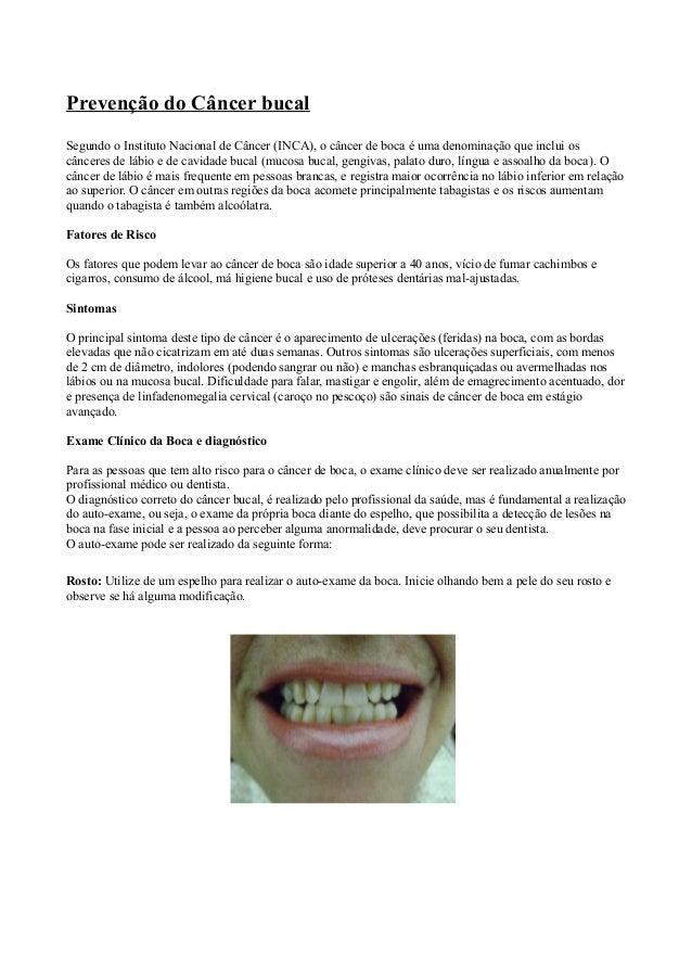 Prevenção do Câncer bucalSegundo o Instituto Nacional de Câncer (INCA), o câncer de boca é uma denominação que inclui oscâ...