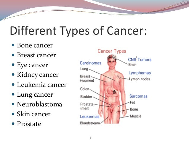 The types of lung cancer and its forms