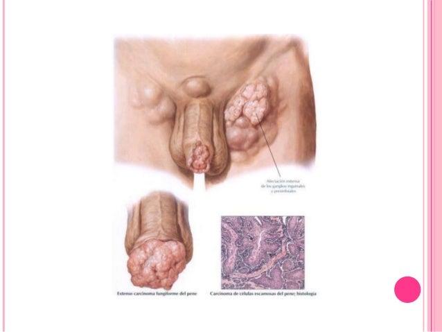 El Papanicolaou es una prueba sencilla y rápida que puede evitar esta enfermedad Consiste en obtener una pequeña muestra d...