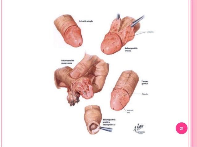 CONDICIONES DE TOMA DE PAP Condiciones de la paciente: a) Fuera del período menstrual. b) Ausencia de metrorragias. c) Aus...