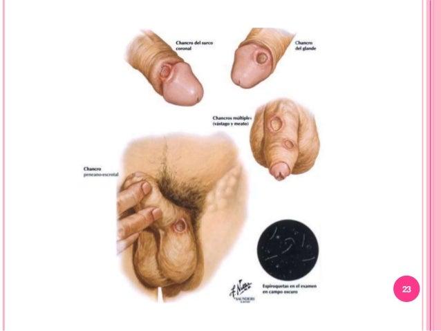 EXAMEN FISICO Los hallazgos de examenes bimanuales pelvicos, usualmente revelan metastasis pelvica o parametrial. Edema de...