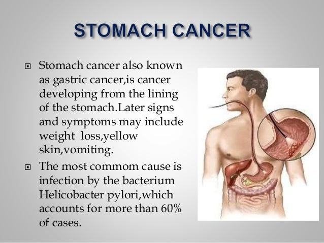 signs of stomach cancer – citybeauty, Human Body