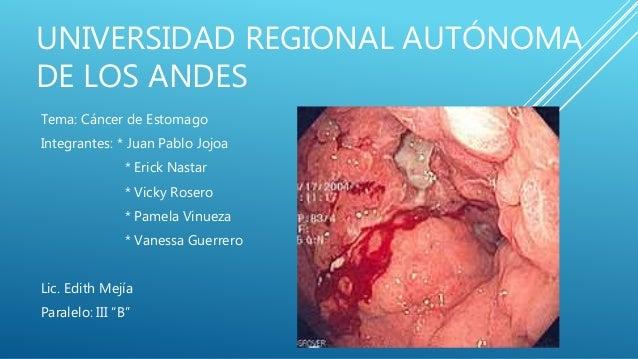 UNIVERSIDAD REGIONAL AUTÓNOMA DE LOS ANDES Tema: Cáncer de Estomago Integrantes: * Juan Pablo Jojoa * Erick Nastar * Vicky...