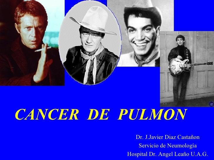 CANCER  DE  PULMON   Dr. J.Javier Diaz Castañon Servicio de Neumología Hospital Dr. Angel Leaño U.A.G.