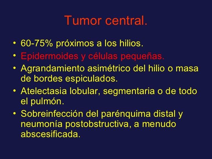 Tumor central. <ul><li>60-75% próximos a los hilios. </li></ul><ul><li>Epidermoides y células pequeñas. </li></ul><ul><li>...