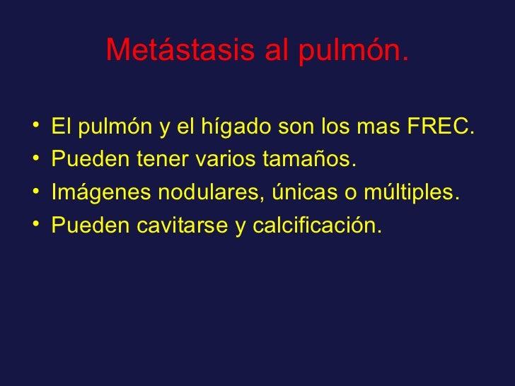 Metástasis al pulmón. <ul><li>El pulmón y el hígado son los mas FREC. </li></ul><ul><li>Pueden tener varios tamaños. </li>...