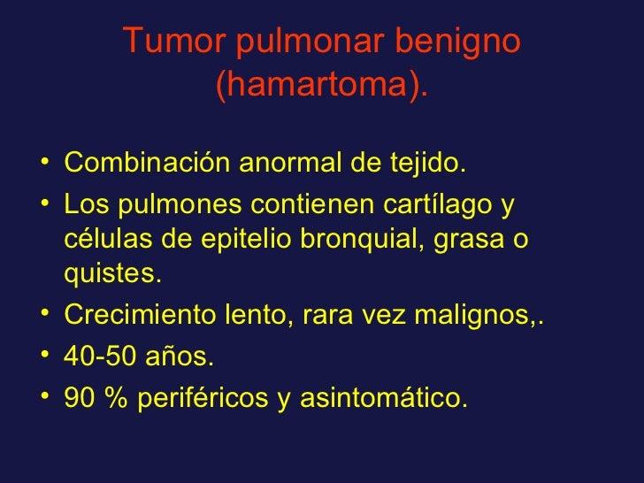 Tumor pulmonar benigno (hamartoma). <ul><li>Combinación anormal de tejido. </li></ul><ul><li>Los pulmones contienen cartíl...