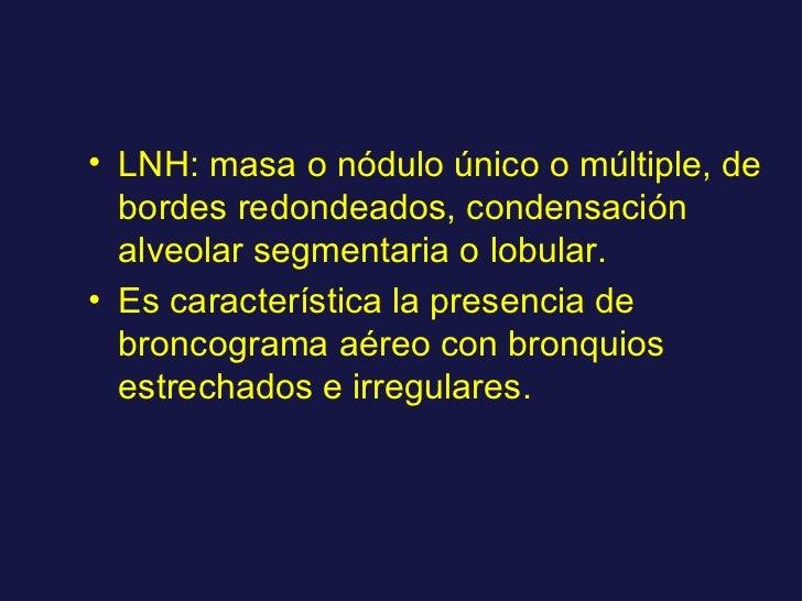 <ul><li>LNH: masa o nódulo único o múltiple, de bordes redondeados, condensación alveolar segmentaria o lobular. </li></ul...