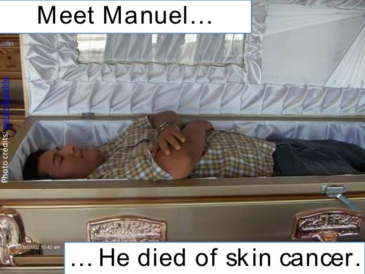 Meet Manuel…Photo credits: mirandopablo                                … He died of sk in cancer.