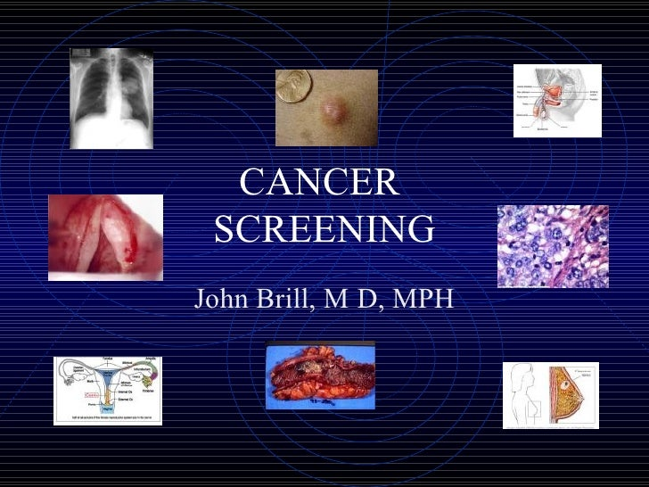 CANCER  SCREENING John Brill, M   D, MPH