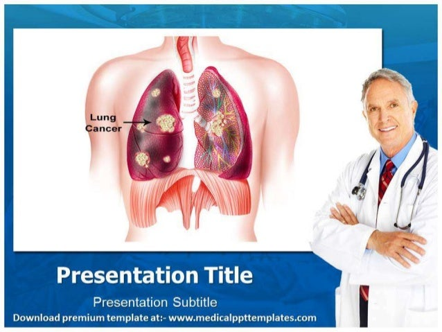 Lung cancer powerpoint template toneelgroepblik Image collections