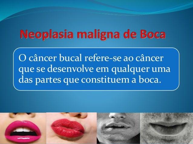 O câncer bucal refere-se ao câncer  que se desenvolve em qualquer uma  das partes que constituem a boca.