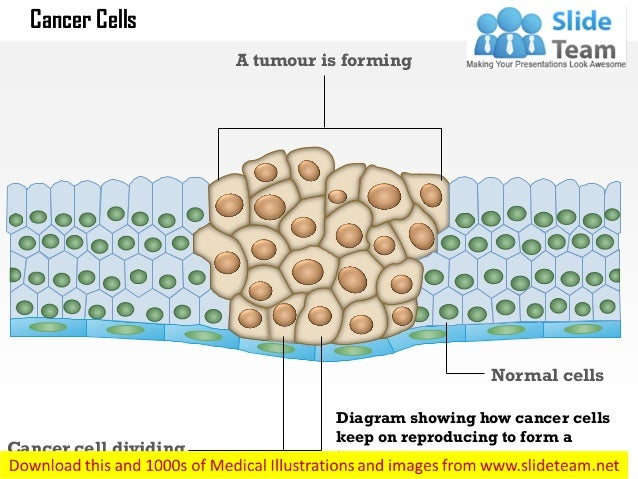 Cancer cells medical images for power point cancer cell dividing normal cells a tumour is forming diagram showing how cancer cells keep on ccuart Images