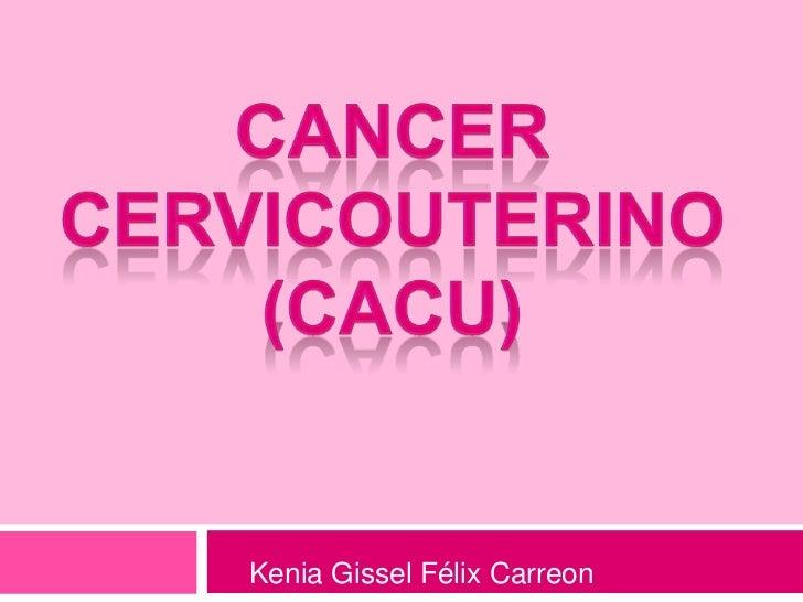 CANCER CERVICOUTERINO (CaCU)<br />Kenia Gissel Félix Carreon<br />