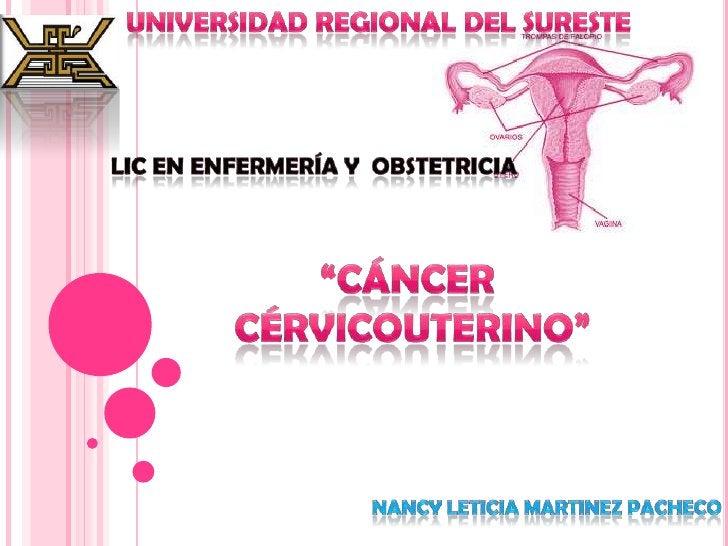 """Universidad regional del sureste<br />Lic en enfermería y  obstetricia<br />""""Cáncer <br />Cérvicouterino""""<br />Nancy letic..."""