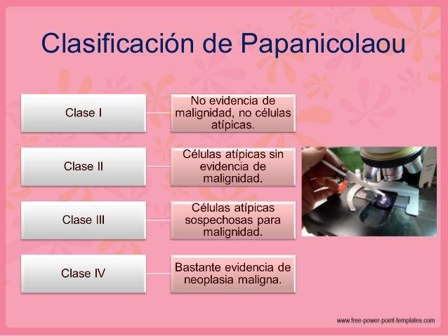 Tipos histológicos de CACU 3-5%