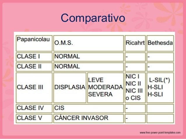 Carcinoma Escamoso • Redes infiltrantes de bandas de células neoplásicas separadas por estroma • Variación en los patrones...
