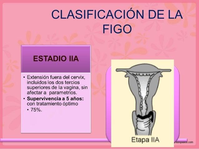 CLASIFICACIÓN DE LA FIGO