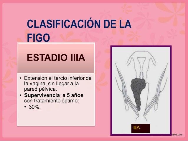 CORRESPONDENCIA ENTRE CLASIFICACIONES FIGO TNM 0 TiS I T1 IA T1a IA1 T1a1 IA2 T1a2 IB T1b IB1 T1b1 IB2 T1b2 FIGO TNM II T2...