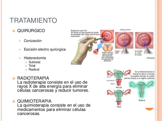 Cancer cervicouterino - Tratamiento para carcoma ...
