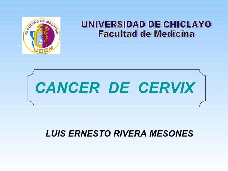 CANCER  DE  CERVIX LUIS ERNESTO RIVERA MESONES UNIVERSIDAD DE CHICLAYO Facultad de Medicina