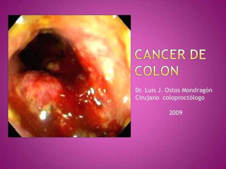 CANCER DE           COLON<br />Dr. Luis J. Ostos Mondragón<br />Cirujano  coloproctólogo<br />                  2009<br />