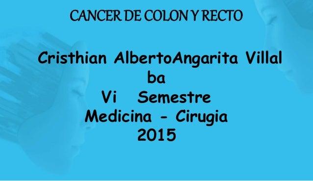 CANCER DE COLON Y RECTO Cristhian AlbertoAngarita Villal ba Vi Semestre Medicina - Cirugia 2015