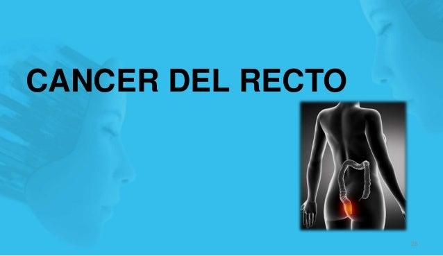 CANCER DEL RECTO 28