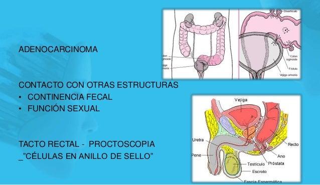 """ADENOCARCINOMA CONTACTO CON OTRAS ESTRUCTURAS • CONTINENCIA FECAL • FUNCIÓN SEXUAL TACTO RECTAL - PROCTOSCOPIA _""""CÉLULAS E..."""