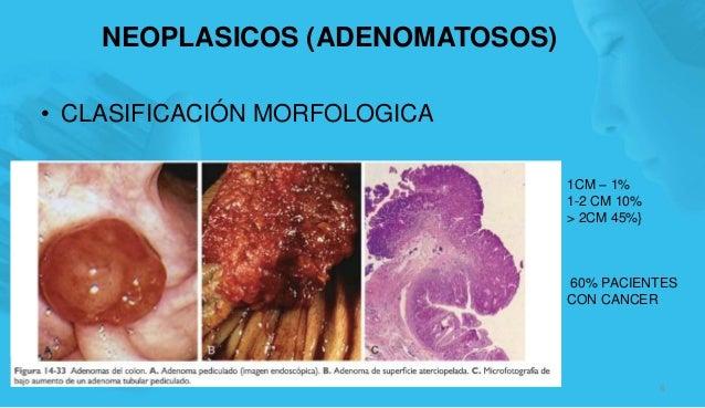 NEOPLASICOS (ADENOMATOSOS) • CLASIFICACIÓN MORFOLOGICA 6 1CM – 1% 1-2 CM 10% > 2CM 45%} 60% PACIENTES CON CANCER